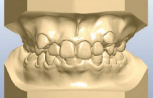 L'impression 3D permet à un laboratoire d'orthodontie de se développer