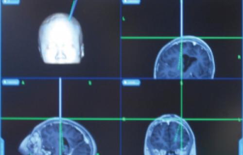 Des modèles multi-matériaux réalistes rendent service aux chirurgiens