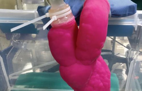3DPTX crée des modèles cardiaques complexes
