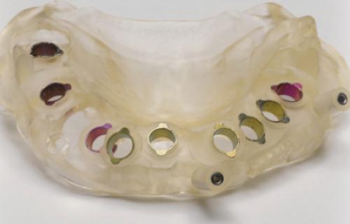 L'imprimante 3D crée une solution numérique pour les guides chirurgicaux