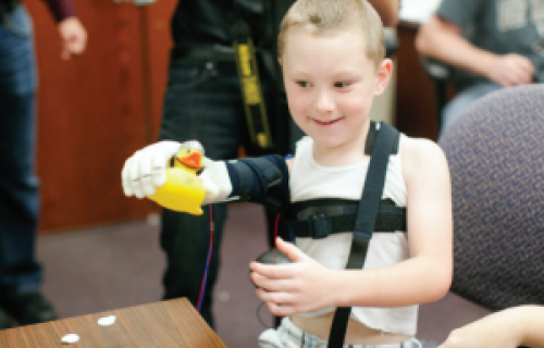 Un avant bras à moins de 350$ imprimé en 3D pour un enfant