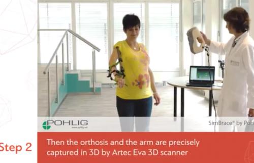 Vidéo - Scanner 3D Artec Eva - Othetics & Prosthetics