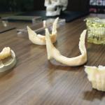 Moderniser un cabinet dentaire avec l'impression 3D