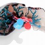 L'impression 3D améliore la planification pré-chirurgicale des greffes de foie par l'Université Dokuz Eylül