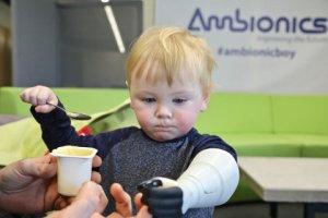 Ambionics réalise une prothèse enfantine unique via l'impression 3D