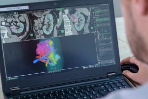 Le CHU de Bordeaux améliore la chirurgie du cancer du rein grâce aux technologies Stratasys
