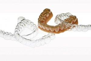 L'impression 3D révolutionne l'orthodontie numérique