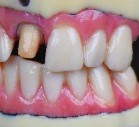 Stratasys J720 Dental